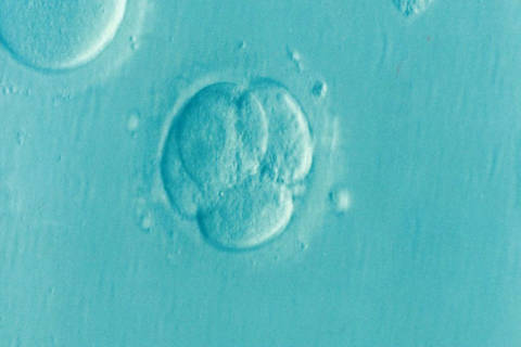 IVF: The Embryos That Didn't Survive